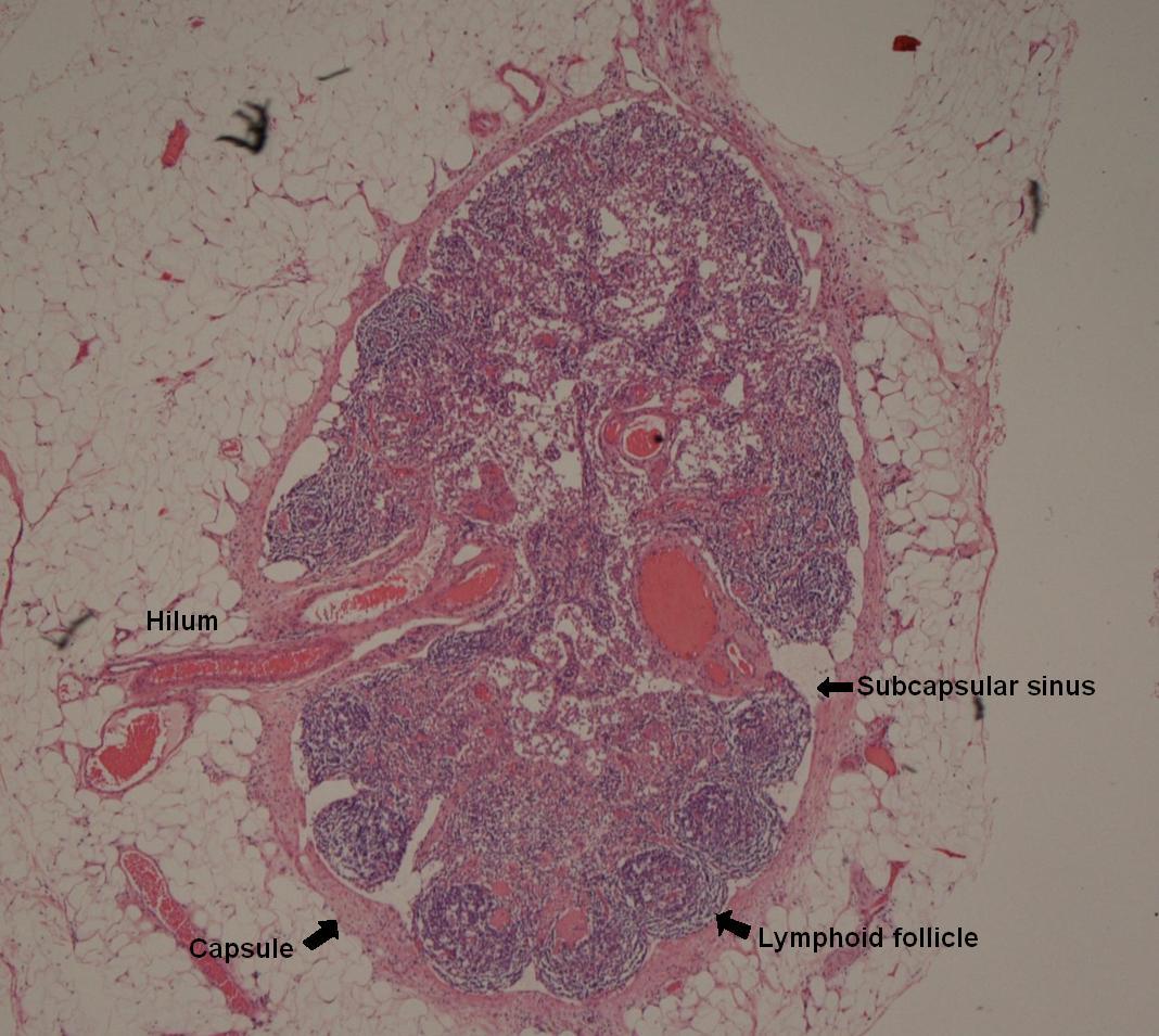 How do lymph nodes look